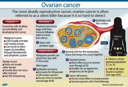 ruptured ovarian cyst