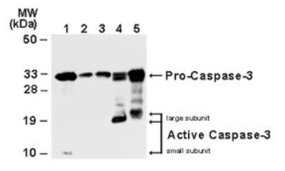 Western Blot: Caspase-3 (Pro and Active) Antibody [NB100-56112] - analysis of Caspase-3. Lysates from Jurkat cells (leukemic T-cell line - lane 1), normal mammary tissue (lane 2) and surgical specimens from three invasive ductal carcinomas (lanes 3-5) were normalized for total protein content (50 ug/lane) and western blotted with anti-Caspase-3. The ~32 kDa pro-Caspase-3 protein was detected in all samples. Active/cleaved Caspase-3 was identified in Jurkat and two ductal carcinomas (14-21 kDa large subunit). http://www.novusbio.com/Caspase-3-Antibody_NB100-56112.html