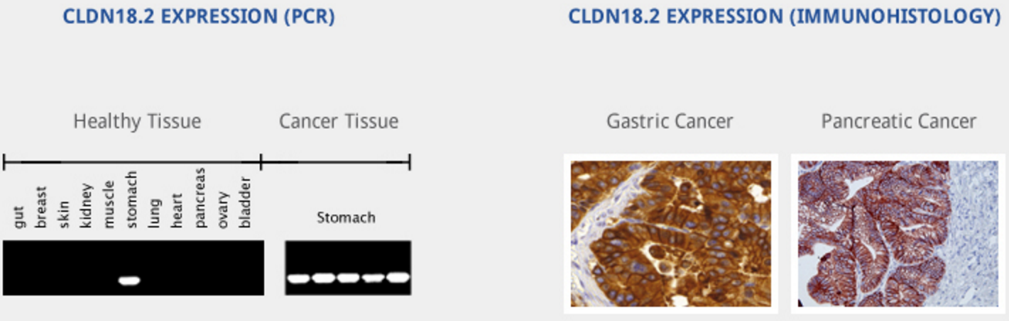 CLDN18.2 is overexpressed in up to 80% of gastrointestinal adenocarcinomas (primary and metastasized)1and 60% pancreatic tumors in addition to other solid cancers. http://www.ganymed-pharmaceuticals.com/pipeline/imab362.html
