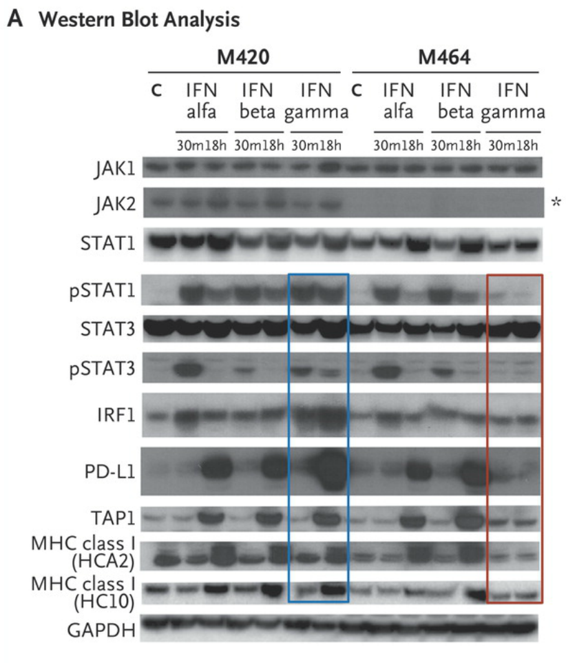 Western blot analysis of lysates from cell lines M420 (Patient 2, baseline) and M464 (Patient 2, relapse) shows Janus kinase (JAK)–signal transducer and activator of transcription (STAT) signaling events and downstream target induction after either 30 minutes (m) or 18 hours (h) of exposure to interferon (IFN) alfa, beta, or gamma (C indicates untreated control). Janus kinase 2 (JAK2) protein expression was absent in the relapse cell line (asterisk), and M464 failed to phosphorylate intermediate signaling components STAT1 and STAT3 or to up-regulate interferon-response targets TAP1, PD-L1, and major histocompatibility complex (MHC) class I after treatment specifically with interferon gamma (red box), as compared with intact signaling in M420 (blue box). There was no change in response to interferon alfa or beta. As shown in Panel B, a lack of response to interferon gamma exposure was also seen in surface staining for PD-L1 and MHC class I by flow cytometry. Each point represents an independent experiment, T bars represent standard deviations, and Pvaluesare for a two-way analysis of variance with Dunnett's correction. MFI denotes mean fluorescent intensity, and NS not significant. http://www.nejm.org/doi/full/10.1056/NEJMoa1604958#t=article