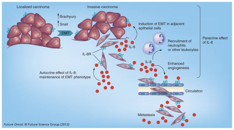 cormorant-humax-il8-interleukin-8-metastatic-cancer