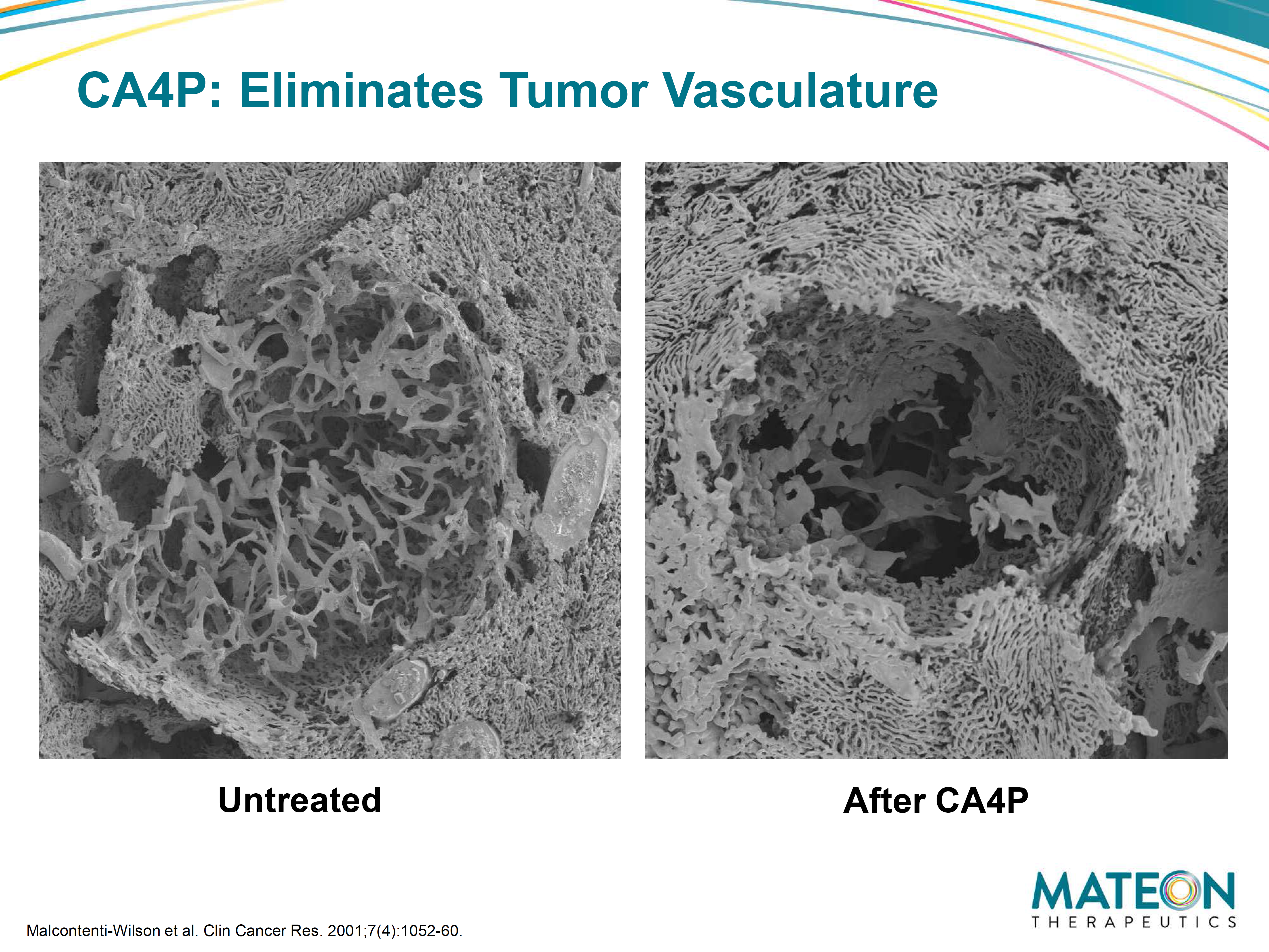 Figure 3: SEM (scanning electron microscope) of corrosion casts on liver metastasis. Untreated (left) figure shows dense tumor vessels at host-tumor interface. The right figure shows marked reduction of the patient's tumor vasculature post treating with CA4P 100mg/kg. Mateon therapeutics