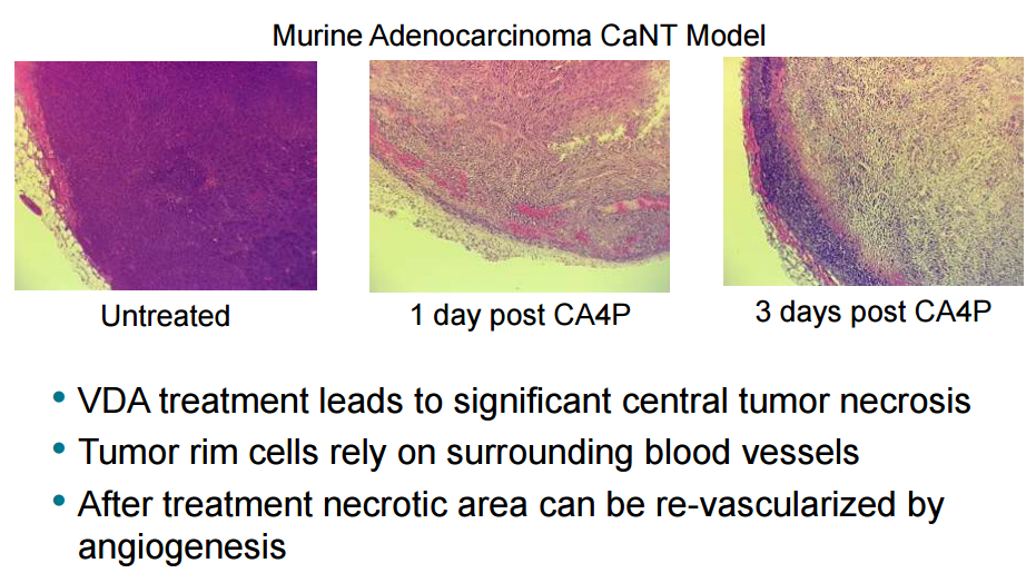 Figure 4: Hematoxylin and eosin staining of histological sections of murine adenocarcinoma CaNT tumors, pre and post treatment with 100mg/kg CA4P. The peripheral vascular rim of viable tumor cells are seen clearly 3 days post CA4P treatment. Mateon therapeutics