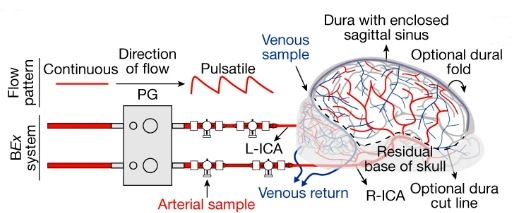 Figure of porcine brain connected to perfusion system